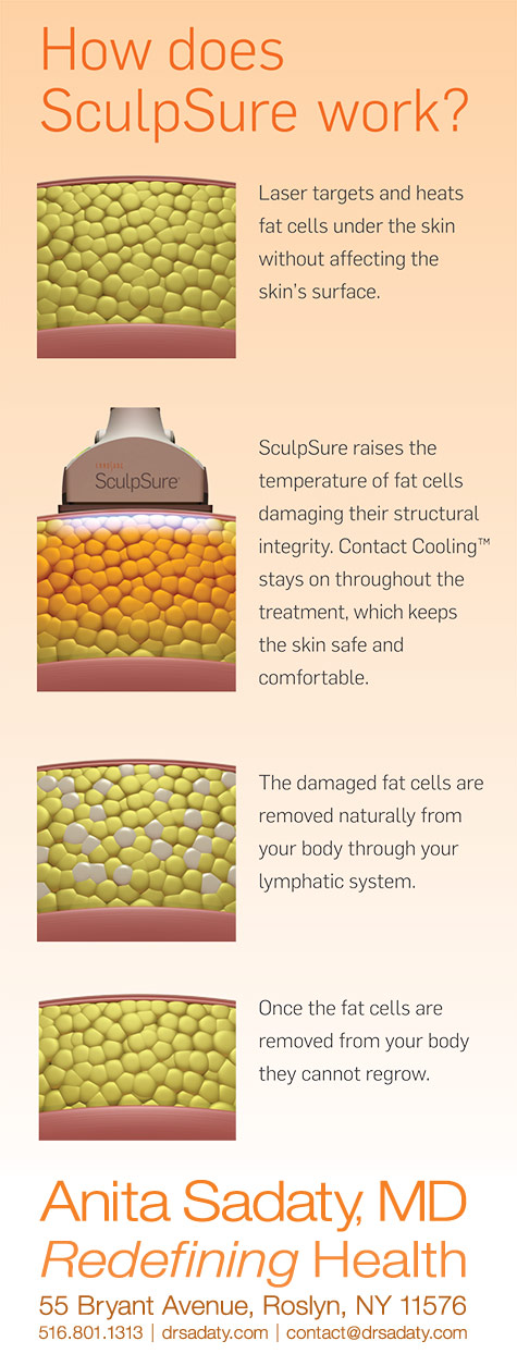 Dr Anita Sadaty - How Does SculpSure Work - Infographic