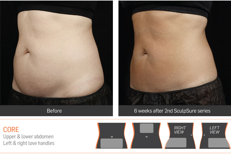 Dr Anita Sadaty SculpSure New York Before After Slide 1