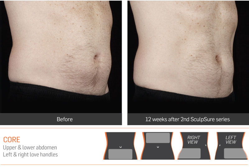 Dr Anita Sadaty SculpSure New York Before After Slide 2