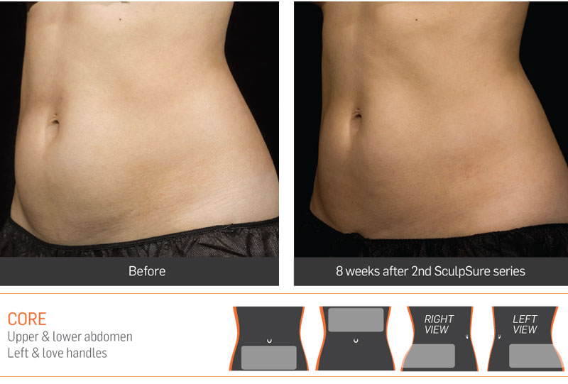 Dr Anita Sadaty SculpSure New York Before After Slide 3