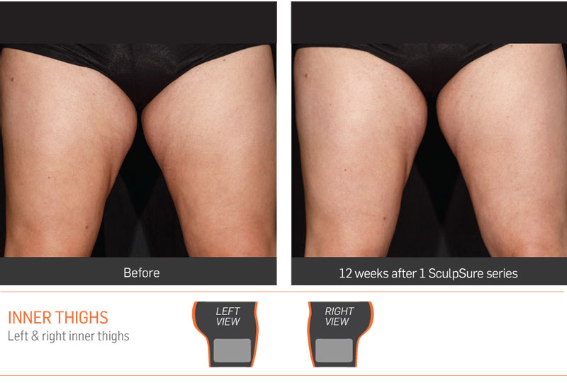 Dr Anita Sadaty SculpSure New York Before After Slide 4