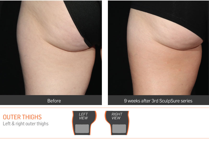 Dr Anita Sadaty SculpSure New York Before After Slide 5