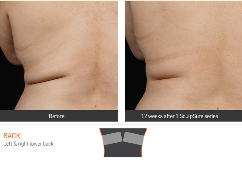 Dr Anita Sadaty SculpSure New York Before After Slide 6