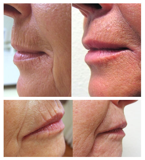 Dr. Sadaty Fractora Before and After Lip wrinkle therapy Long-Island New York