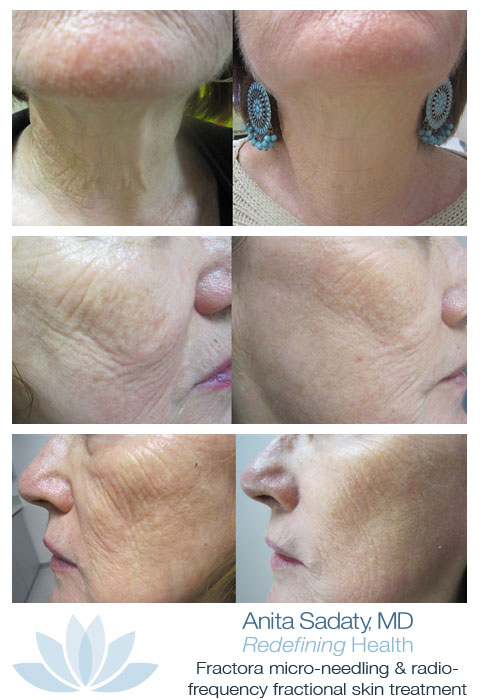 Dr. Anita Sadaty Fractora Before-And-After Pictures New York