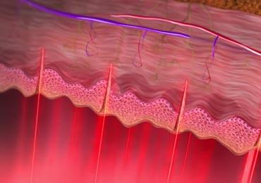 vaginal laser therapy stimulating Collage and Elastin regeneration