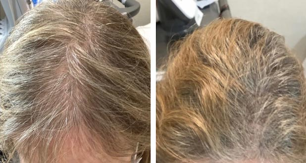 PRP Hair Loss Treatment Results from Redefining Health Medical R